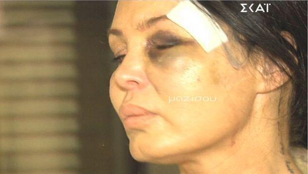 Η Μαντώ Τζαβάρα καταγγέλλει τον Μανώλη Παπαμακάριο για ξυλοδαρμό