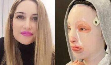 Επίθεση βιτριόλι -Συγκλονίζει η Ιωάννα: «Όσα χρόνια κι αν καταδικαστεί, εγώ καταδικάστηκα περισσότερα»