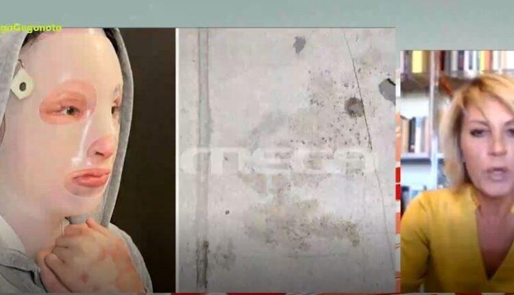 Επίθεση με βιτριόλι - Ξεκινά αύριο η δίκη για την υπόθεση που συγκλόνισε το πανελλήνιο (VIDEO)
