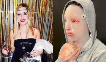 «Πάρε 150.000€ και λιώσε τη μούρη της»: Σοκαριστικό εξώφυλλο για την υπόθεση με το βιτριόλι